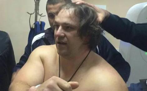 Пугачева ранил погибший полицейский, ноне его напарница,— МВД